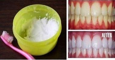 a832f4c3b وصفة طبيعية مذهلة لتبييض الأسنان فى دقيقة واحدة - اليوم السابع