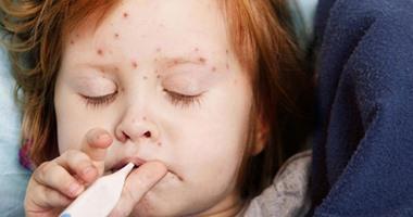 فيديو معلوماتى.. إزاى تحمى أطفالك من فيروس الحصبة؟