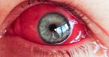 طبيب عيون نزيف العين يحدث نتيجة ضربة قوية مباشرة عليها اليوم السابع