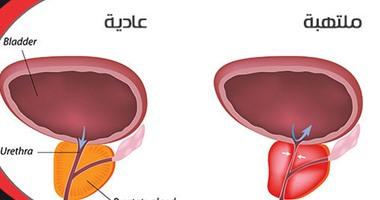 """التهابات البروستاتا والمثانة.. أهم أسباب مشكلة """"كثرة التبول"""""""