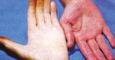 كيف يشخص الأطباء سبب انخفاض عدد الهيموجلوبين بالجسم؟