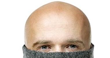 دراسة: الرجال قصار القامة أكثر عرضة للإصابة بالصلع