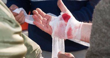 5 خطوات لوقف نزيف الدم فى الحوادث.. تعرف عليها