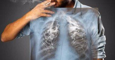 4 أعراض مبكرة لسرطان الرئة..تعرف عليها