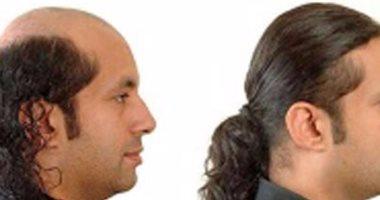 4d9cffa15 س و ج.. كل ما تريد معرفته عن تركيب الشعر للرجال - اليوم السابع