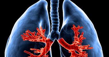"""جهاز """"سبيرومتر"""" يغنى عن فحص الرئة بالآشعة"""