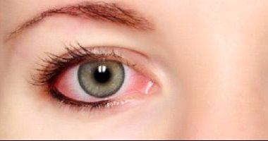 أعراض الإصابة بحساسية العين الموسيمية وطرق الوقاية منها