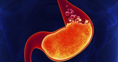 دراسة: جراحة إنقاص الوزن تخفف من الحموضة التى تسببها السمنة