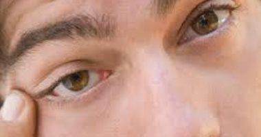 عن طريق زرع خلايا جديدة للعين.. اكتشاف علاج يعيد النظر لفاقديه