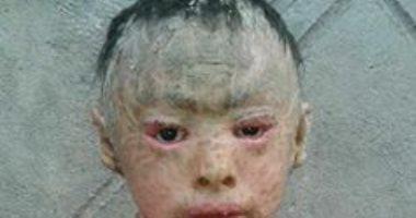 بالصور.. القشرة السمكية مرض يفترس طفلة فى السادسة من عمرها