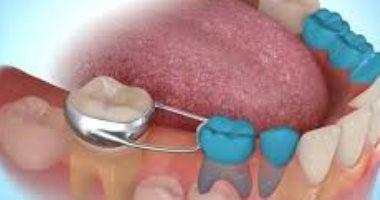 احذر.. المشروبات الغازية والمأكولات الحمضية أبرز أسباب تآكل الأسنان