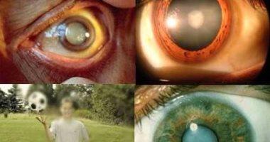 823a206f7 8 عوامل تسبب المياه البيضاء فى العين وتؤدى لفقدان البصر.. تعرف عليها ...