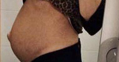 بالصور.. أطباء ينجحون في إزالة ورم من بطن امراة بحجم 6 كيلو