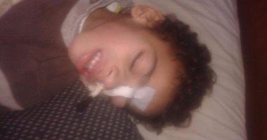20f5e0ec00623 طفل عمرة 5 سنوات يعانى من مرض