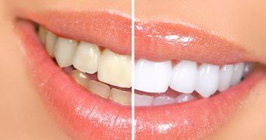 تخلصى من اصفرار الأسنان واحصلى على ابتسامة مميزة مع زيت جوز الهند