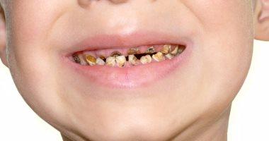 خطوات احمى بها طفلك من تسوس أسنانه اللبنية