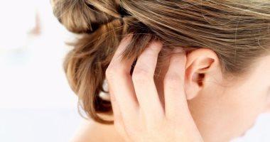5 وصفات طبيعية تعالج مشكلة تهيج فروة الرأس فى الصيف اليوم السابع