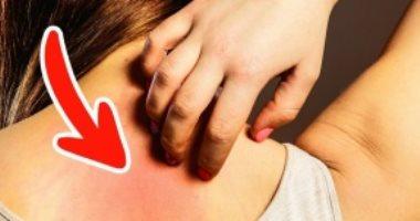 خلى بالك من جلدك.. تغيرات جلدية تنذر بمشكلة صحية كامنة