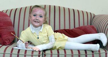 طفلة 4 سنوات تعيش بمرض جلدى يمزق بشرتها مع أقل لمسة