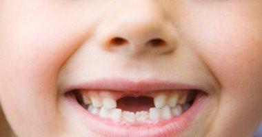 اسباب رائحة الفم الكريهة عند الاطفال