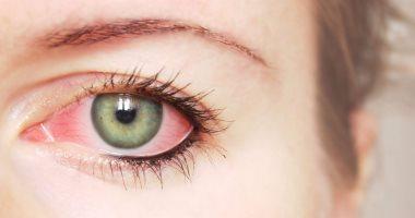 طبيبة عيون تحذر من التعرض لآشعة الشمس خلال الظهيرة