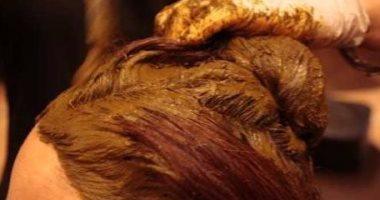 الطب البديل.. استخدم الحناء فى علاج قشرة الشعر وفروة الرأس