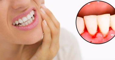 طبيب أسنان: أسباب تؤدى إلى نزيف اللثة.. أبرزها تكون الجير
