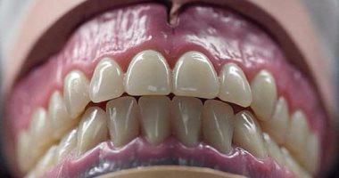 لو هتركب طقم أسنان.. تعرف على تعليمات العناية به