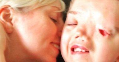 إنستجرام يحذف صورة طفل مصاب بتشوه فى وجهه.. ووالدته تشن هجوما عنيفا ضده