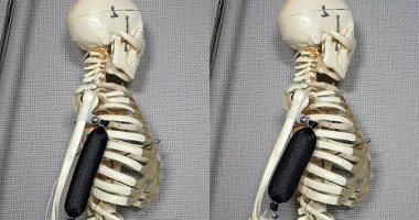 مهندسون يبتكرون عضلات صناعية يمكنها حمل أغراض أثقل 1000 مرة من وزنها
