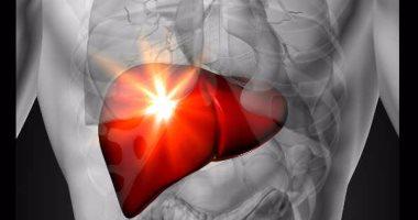 اسباب تليف الكبد من ضمنها الدهون والالتهابات