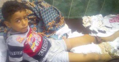 بالصور.. تعفن قدم طفل بسبب الإهمال الطبى بمستشفى كفر الدوار
