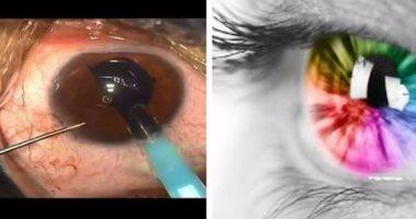 50a47e6b9 تغير لون العين بالجراحة بين العلاج والتجميل وفقدان البصر.. طبيبة عيون:  الرجال أكثر