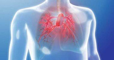 أمراض القلب والروماتيزم تسبب ارتفاع ضغط الدم الرئوى
