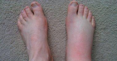 اسباب تورم القدم منها الحمل والإصابة بالجلطة الدموية