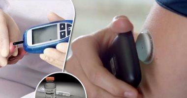 """50 حقيقة لا تعرفها عن مرض السكر.. يسمى باليونانية """"السيفون"""".. تذوق البول أقدم طريقة للكشف عنه.. يقلل متوسط العمر من 5 إلى 10سنوات.. والرجال الأكثر عرضة للإصابة.. 170 مليون مصاب بالعالم.. مليون حالة بتر سنوياً"""