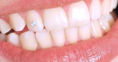 تجميل الأسنان المعوجة مش رفاهية.. اعرف إزاى بتأثر على صحتك