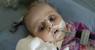 """صور.. """"أسيل"""" طفلة تعيش على التنفس الصناعى وعلاجها خارج مصر"""