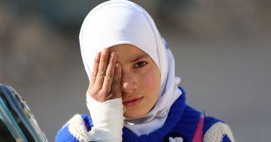 صور.. أطفال سوريا يتضامنون مع طفل فقد عينه وتحطمت جمجمته فى الغوطة