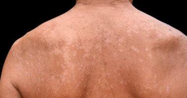 أسباب الإصابة بالتينيا فى الصيف أهمها المناعة الضعيفة