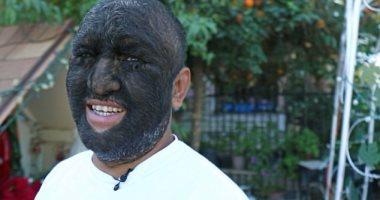 الرجل الذئب.. أمريكي يصاب بمرض نادر يغطى جسمه بالشعر بنسبة 98%