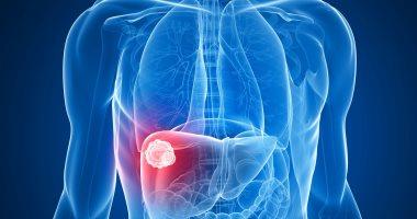 انخفاض معدلات زراعة الكبد المرتبطة بفيروس سى بشكل كبير فى أوروبا