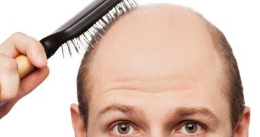 انسى الصلع.. 8 طرق طبيعية لإعادة إنبات الشعر