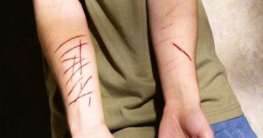 الاستمتاع بعقاب الذات مرض نفسى يصيب الفتيات أكثر من الرجال.. تعرف عليه