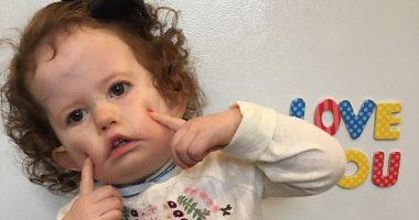 صور.. فتاة تعانى من حالة نادرة تجعلها غير قادرة على الابتسامة