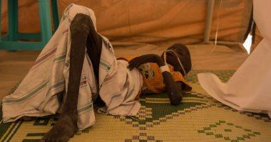 الأمم المتحدة: نصف سكان اليمن قد يواجهون خطر المجاعة قريبا