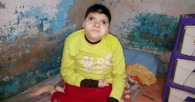 """صور.. مأساة """"فتاة الببرونة"""" أغرب حالة مرضية فى مصر"""