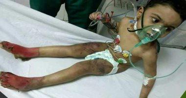 التضامن: اتخاذ الإجراءات القانونية ضد الأسرة فى واقعة تعذيب طفل كفر الشيخ