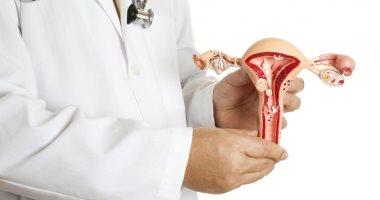 س وج : كل ما تريد معرفته عن التهاب بطانة الرحم وطرق الوقاية