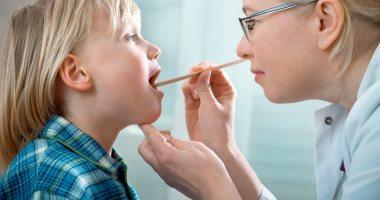 التهاب اللوزتين المتكرر يؤدى لمضاعفات خطيرة.. الإصابة بالحمى الروماتيزمية أخطرها